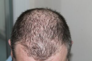 Good Hair Loss Treatment – Combat Your Hair Loss Problem