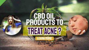 cbd treat acne